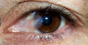 Плёнка на глазах