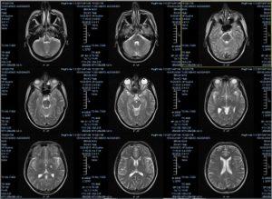Расшифровка МРТ-снимка головного мозга