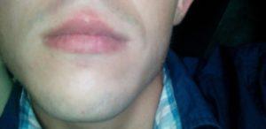 Белая полоса под нижней губой