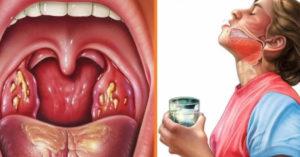 Болит горло но глотать не больно