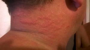 Волдыри на спине, зуд, покраснения. Как лечить?