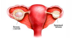 Боли в груди и киста левого яичника