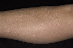 Пигментные (белые) пятна на руках и ногах (не всегда)