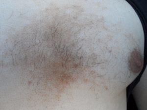 Красноты и шелушение под грудью