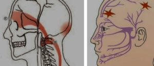 Болит голова за левым ухом и чуть выше