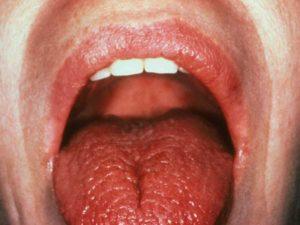Жжение полости рта