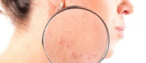 Аллергия и хеликобактер могут быть связаны?