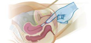 Возможно ли использование вагинального крема во время месячных