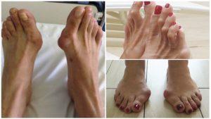 Удаление искривленного пальца на ноге