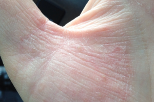 Сохнет кожа очень сильно, покрывается коркой как у старушки