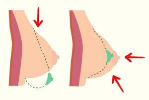 Перестала расти грудь, треугольная форма груди