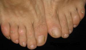 Уплотнение кожи на пальцах ног