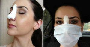 Запах в носу после ринопластики