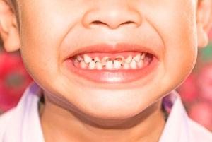 Плохие молочные зубы у ребенка