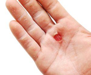 Незаживающая рана на пальце