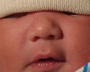 Белые точки/прыщики на носу ребенка