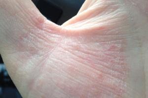 Сухое пятно трескающееся на ладони