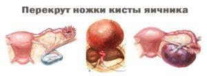 Неопределенный вид кисты яичника