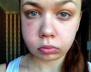 Опух глаз после удаления зуба