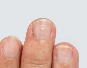 Ямочки на ногтях у ребенка