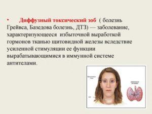 ДТЗ 2 степени и тиреотоксикоз