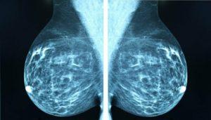 Маммография плохая