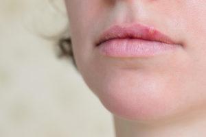 Ослабли губы