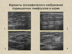 Нормы размера подмышечного лимфоузла при УЗИ обследовании?