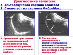 Жировой гепатоз, расшифровка УЗИ