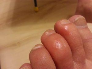 Зуд под ногтем на пальце ноги