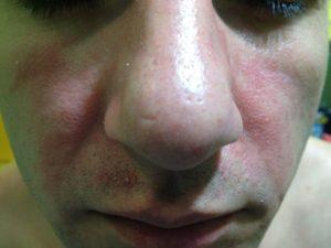 Зудящее покраснение вокруг носа с шелушением гловы