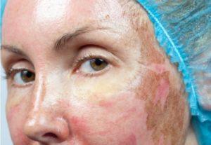 Случайно содрала кожу с лица после хим. Пилинга