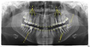 Расшифровка рентгеновского снимка