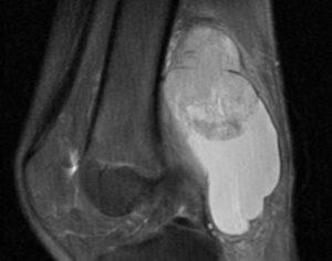 Синовиома колена