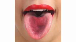 Налет на языке, и иногда язык кровоточит