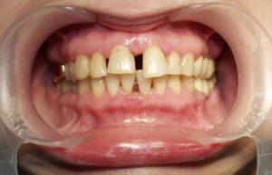 Ощущение шатания зубов