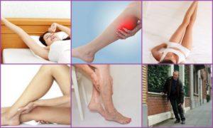 Судороги мышц ног, шеи, челюсти