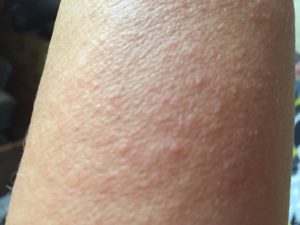 Красное пятно на руке, внутри маленькие прыщики