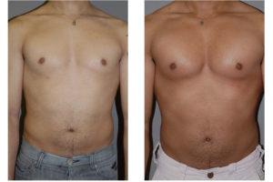 Увеличилась грудь от мастодиона