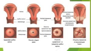 Изменение формы матки