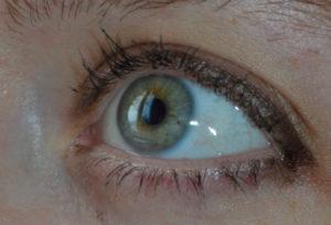 Царапина на белке глаза