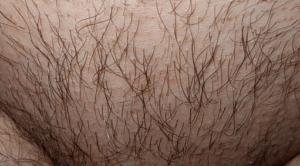 Выпадение лобковых волос
