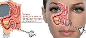 Высокий СОЭ и воспаление придаточных пазух носа