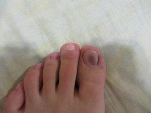 Темные пятна на ногтях обоих больших пальцев ног