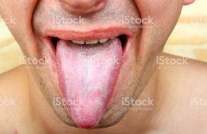 Язычок опустился прям на язык