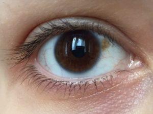 Белые пятна на белках глаз