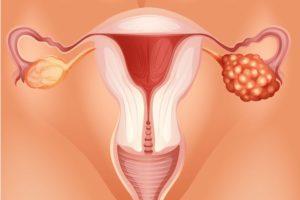 Воспаление яичников и задержка