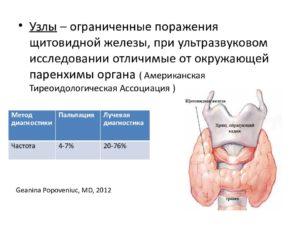 Узел перешейка щитовидной желещы 7х4ммм