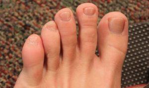 Боли среднего пальца ноги