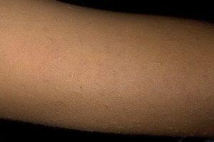 Фолликулярный кератоз у ребенка, возможно ихтиоз